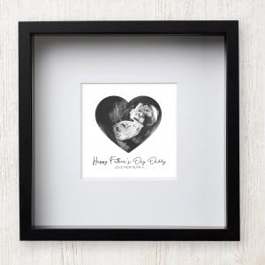 Baby Scan Print - Monochrome Heart Design